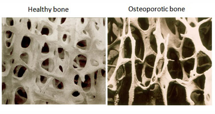 Image result for osteoporosis and fibromyalgia