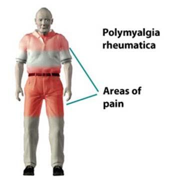 polymyalgia