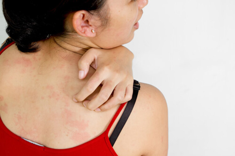 Image result for How to Deal With Fibromyalgia Rash