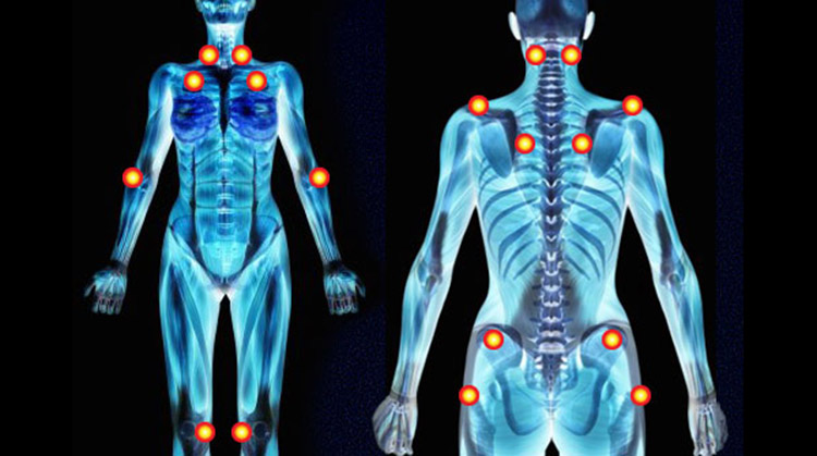 Image result for The Difference Between Fibromyalgia Tender Points and Myofascial Trigger Points