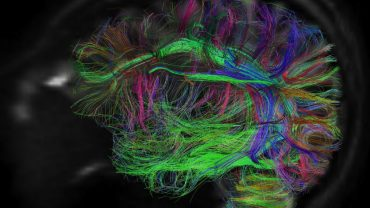 brainmapping