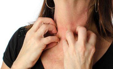 fibromyalgia itching