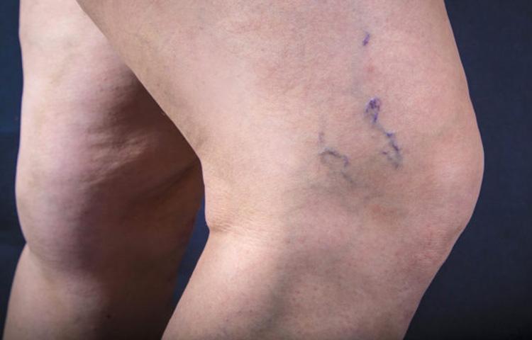 fibromyalgia and varicose veins