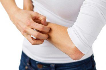 fibromyalgia formication