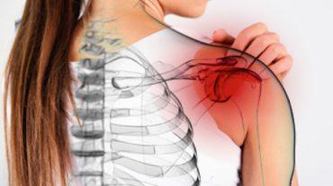 frozen shoulder in fibromyalgia