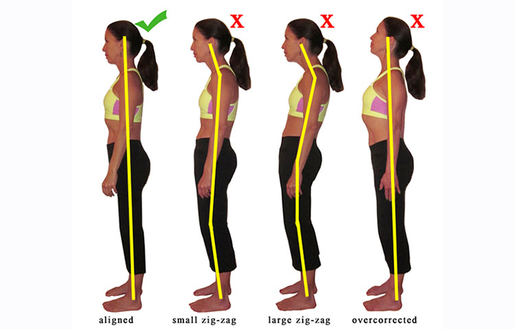 posture correction for fibromyalgia