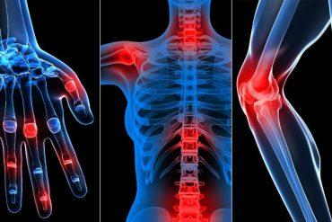 fibromyalgia and rheumatology