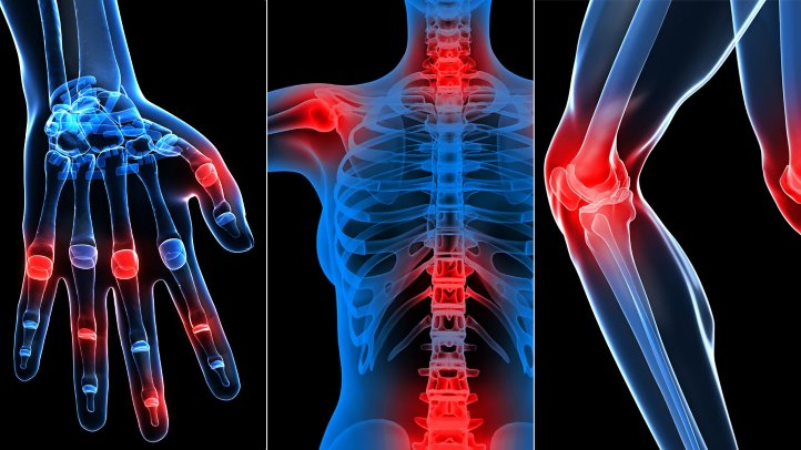 fibromyalgia and rheumatology