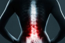 Cervical Spinal Stenosis In Fibromyalgia