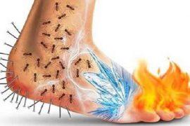 fibromyalgia pain types