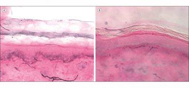 fibromyalgia neuropathy