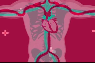 cardiomyopathy in fibromyalgia