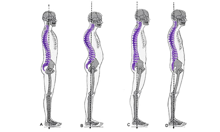 can alexander technique help fibromyalgia