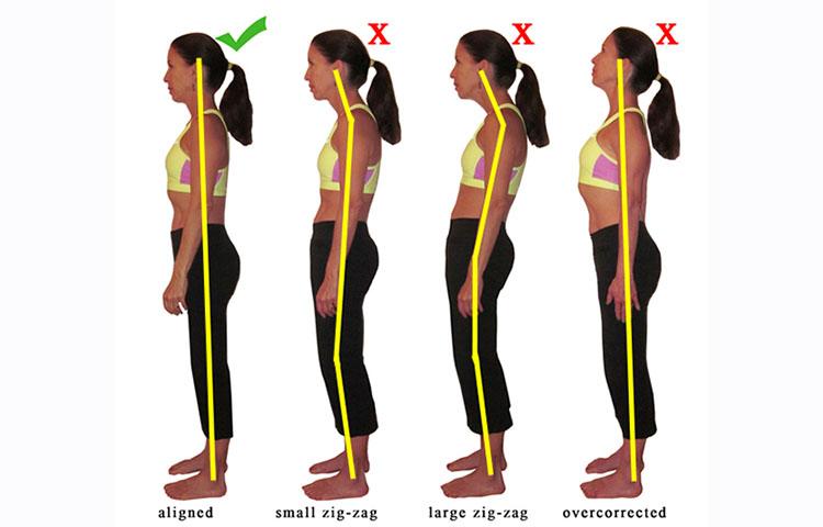 posture correction for fibromyalgia