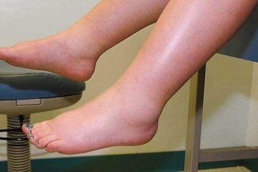 fibromyalgia swelling