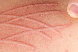 fibromyalgia skin problems