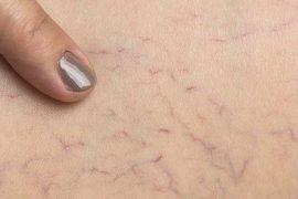 fibromyalgia spider veins