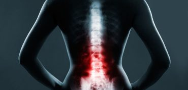 Cervical Spinal Stenosis In Fibromyalgia